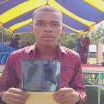 Young Man Diagnosed Of Tuberculosis Healed