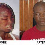 Mathew Koufie Survives Fatal Road Accident