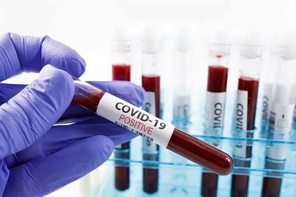 Ghana Begins Digital Verification Of COVID-19 Test Results
